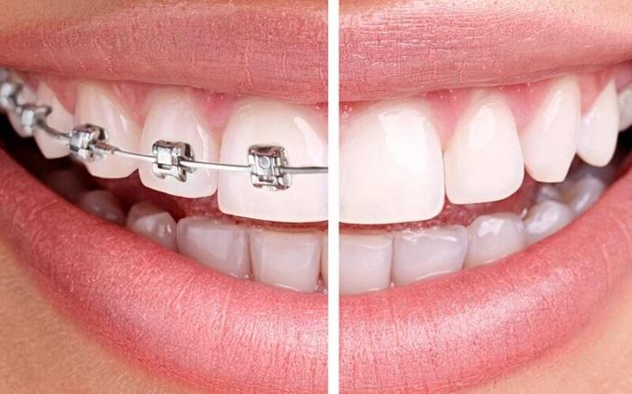 niềng răng mất bao lâu thời gian