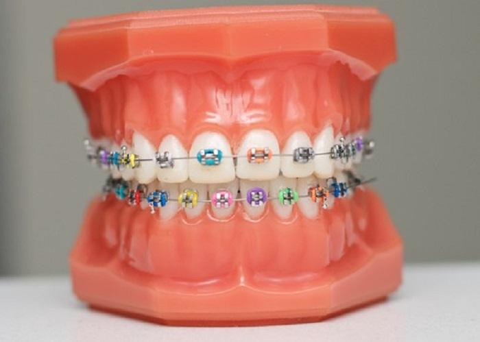 niềng răng màu gì đẹp