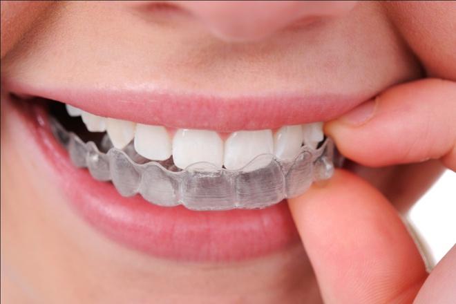 niềng răng MTA là gì