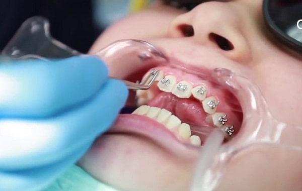 niềng răng nhổ 4 cái