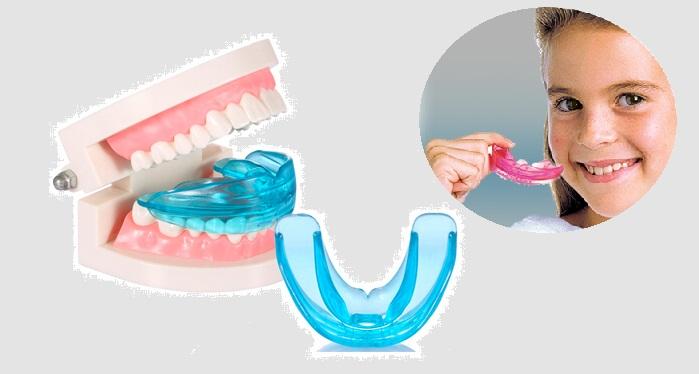 niềng răng Silicon cho trẻ em