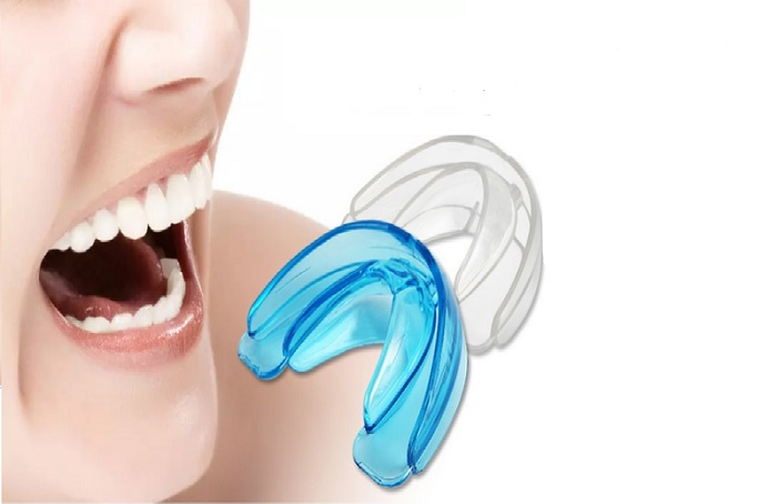 niềng răng Silicon tại nhà có hiệu quả không