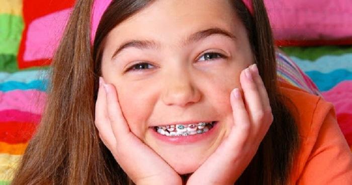 niềng răng tại nhà cho trẻ em