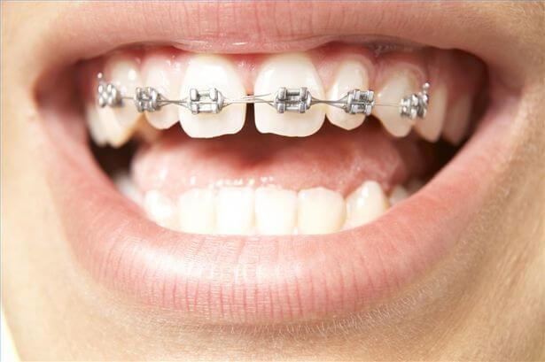 niềng răng thưa có đau không