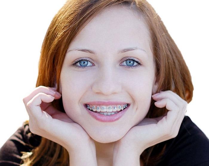 niềng răng trả góp HCM