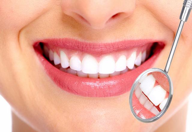 niềng răng và bọc răng sứ cái nào tốt hơn