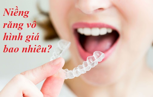 niềng răng vô hình giá bao nhiêu