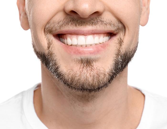 niềng răng xong bị móm