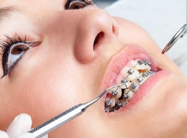 review bộ dụng cụ niềng răng tại nhà