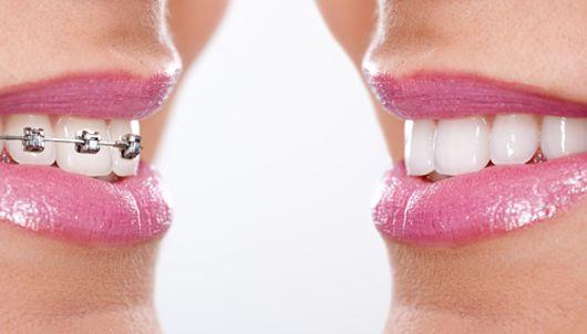 tháo niềng răng có đau không