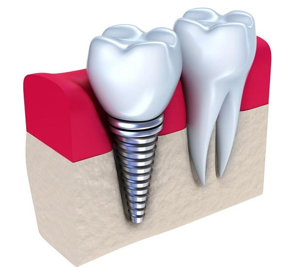 trồng 1 răng Implant giá bao nhiêu