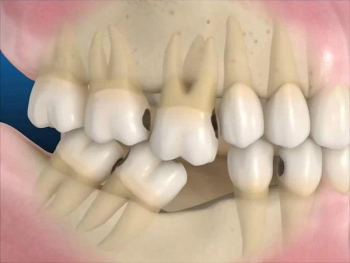 trồng răng bằng phương pháp Implant giá bao nhiêu