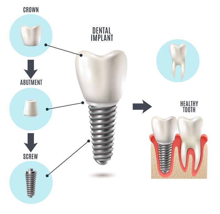 trồng răng cửa Implant