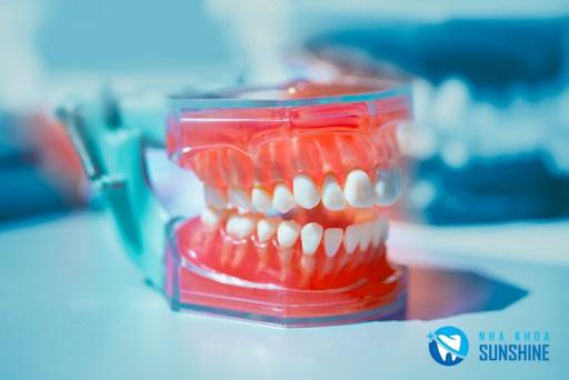 trồng răng giả bằng hàm tháo lắp