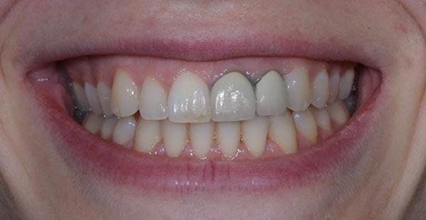 trồng răng giả bị hôi miệng