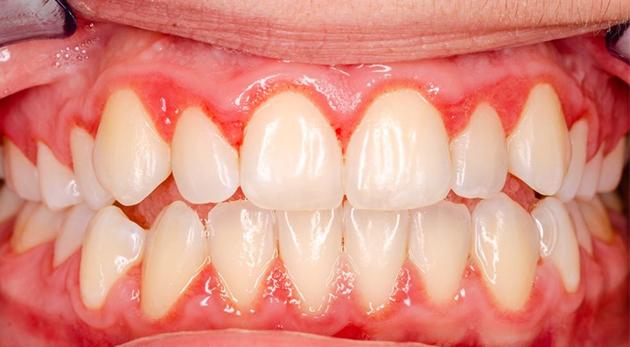trồng răng giả bị sưng