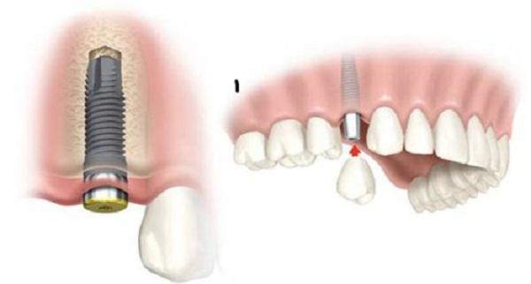 trồng răng giả Implant giá bao nhiêu