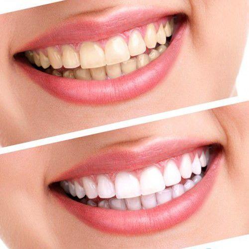 trồng răng giảm giá