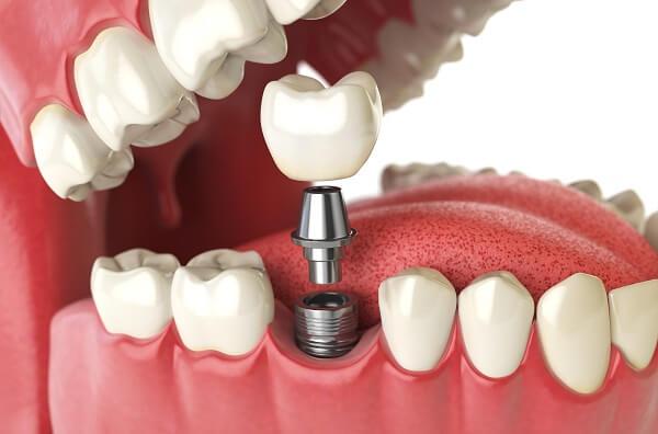 trồng răng hàm giả cố định