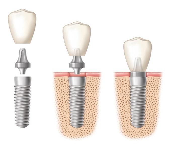 trồng răng hàm Implant giá bao nhiêu