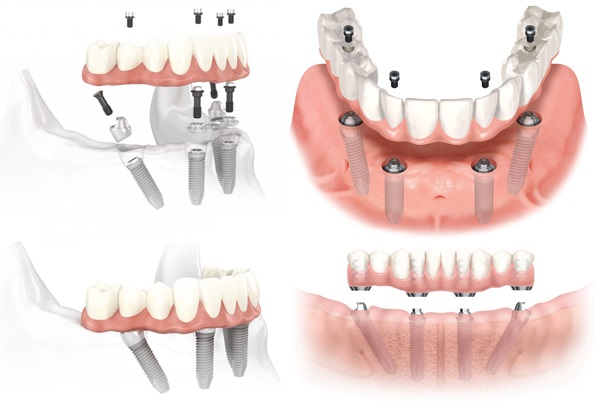 trồng răng Implant all on 4