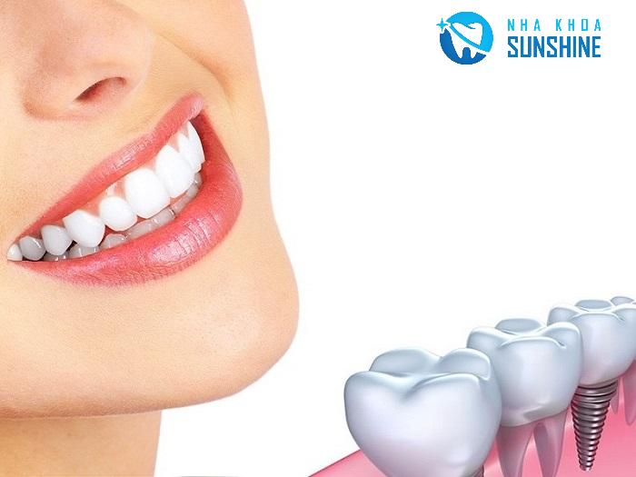 trồng răng Implant cần thơ