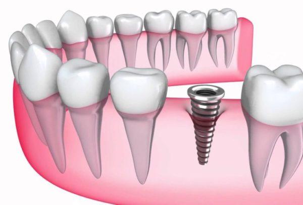 trồng răng Implant có lâu không