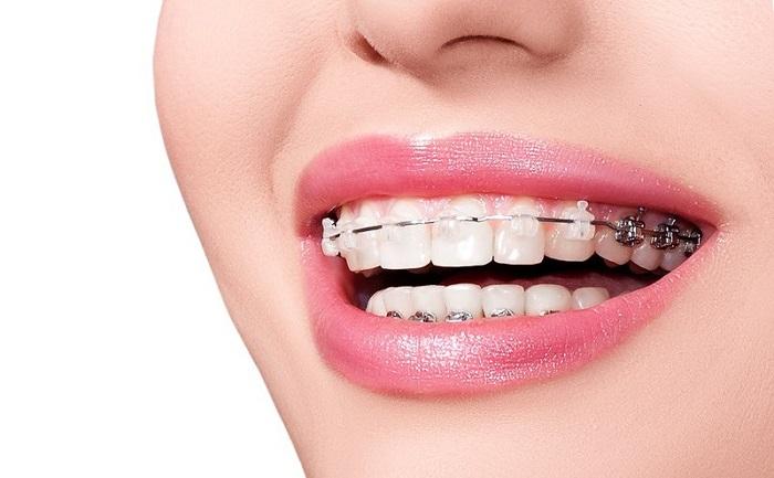 trồng răng Implant có niềng răng được không