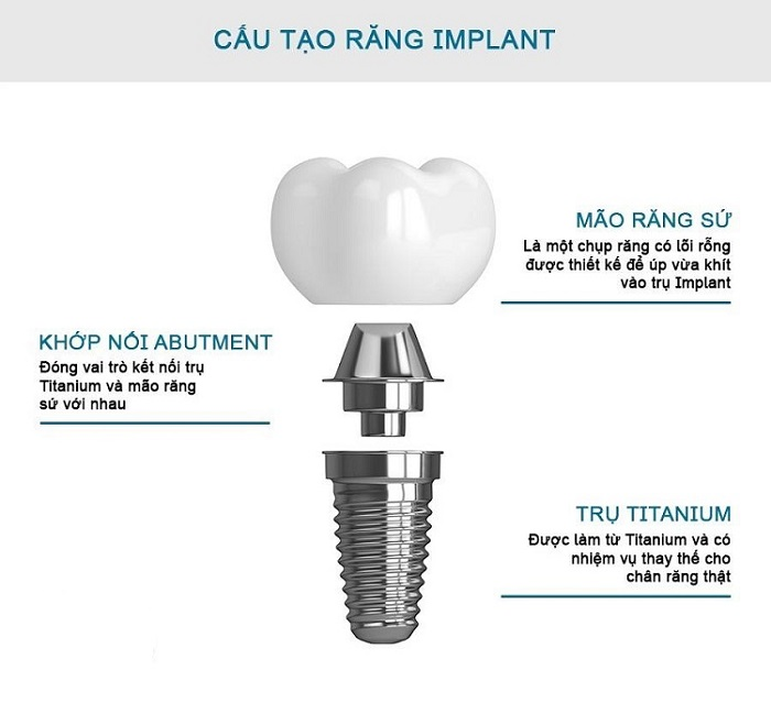 trồng răng Implant có tốt không