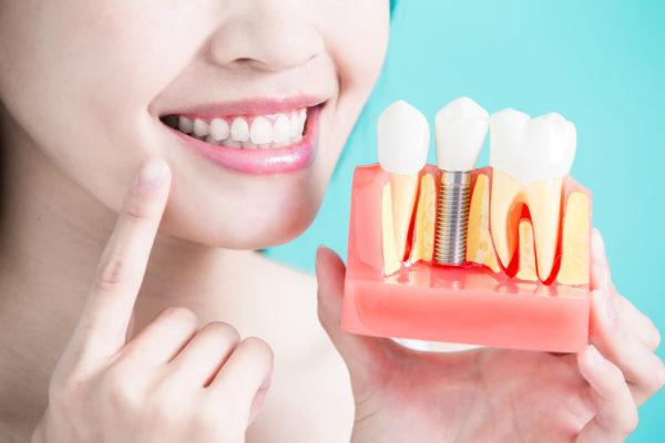 trồng răng Implant được bao lâu