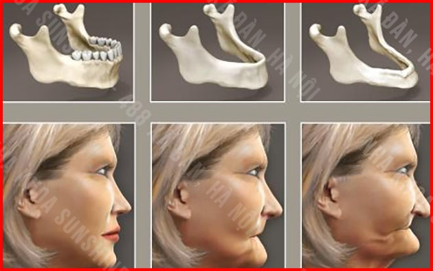 trồng răng Implant giá bao nhiêu tiền
