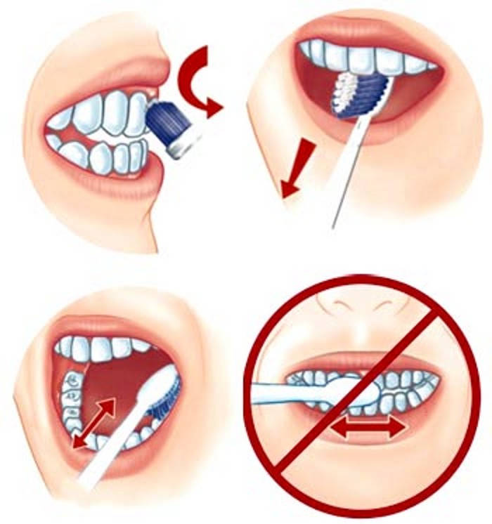 trồng răng Implant hàn quốc có tốt không