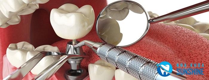 trồng răng Implant trong bao lâu