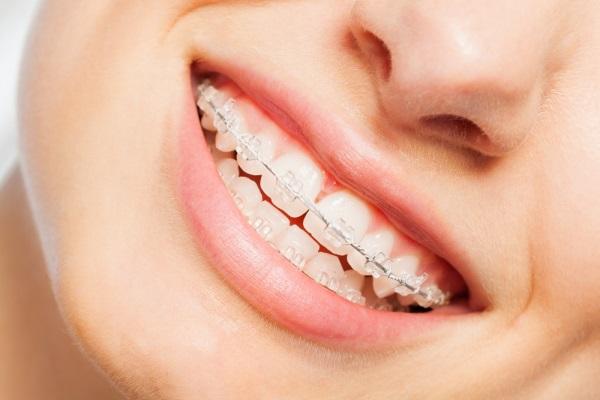 ưu nhược điểm của niềng răng mắc cài sứ