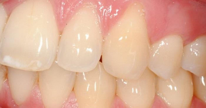 Bao lâu thì nên lấy cao răng 1 lần