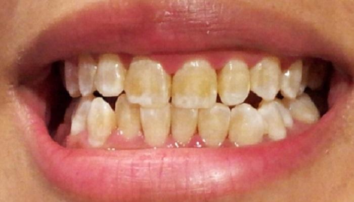 Cách giảm ê buốt răng sau khi lấy cao răng