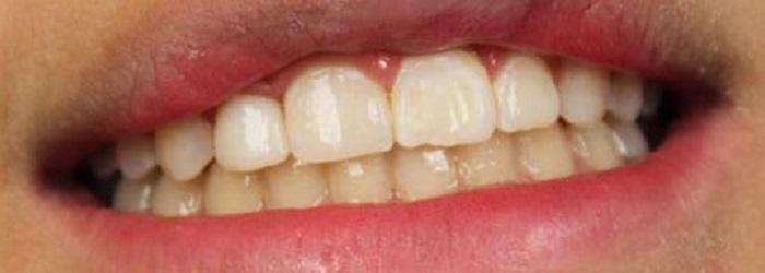 Cách lấy cao răng an toàn