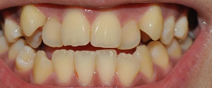 Cách lấy cao răng bằng đường nâu