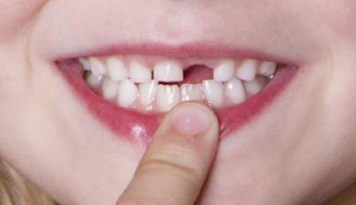 Cách lấy cao răng cho bé