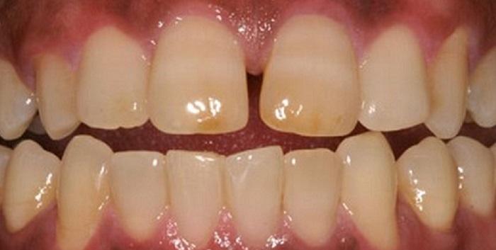 Cách lấy cao răng tại nhà bằng đường nâu