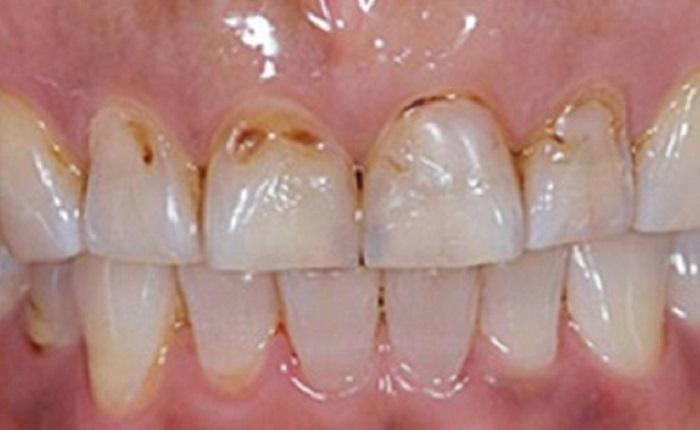 Cách lấy cao răng tại nhà đơn giản