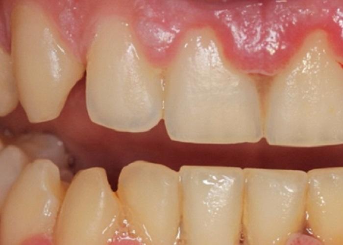Cách lấy cao vôi răng tại nhà