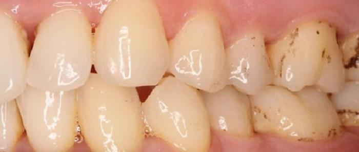 Cần làm gì sau khi lấy cao răng