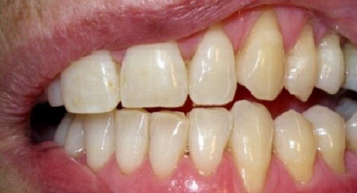 Chi phí lấy cao răng và làm trắng răng