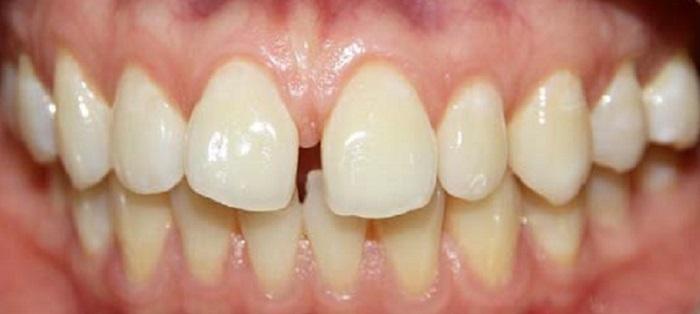 Chỗ lấy cao răng uy tín ở hà nội