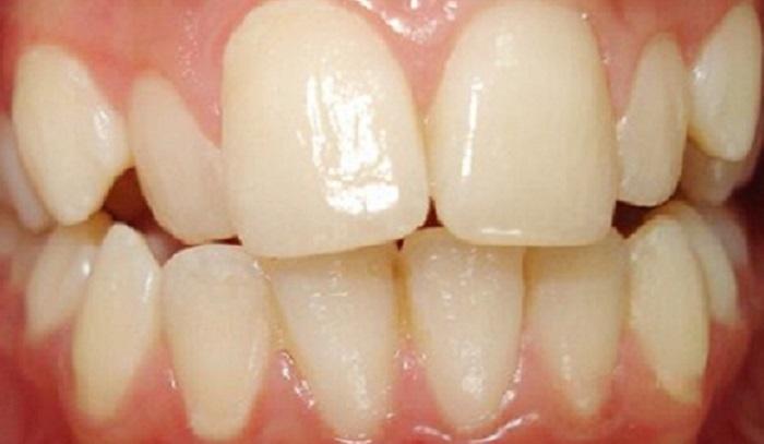 Chữa ê buốt răng sau khi lấy cao răng