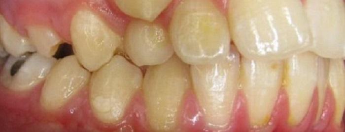 Đầu lấy cao răng art
