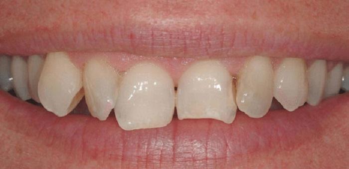 Dụng cụ lấy cao răng tại nhà có tốt không