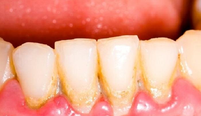 Dụng cụ lấy cao răng tại nhà sonic pic