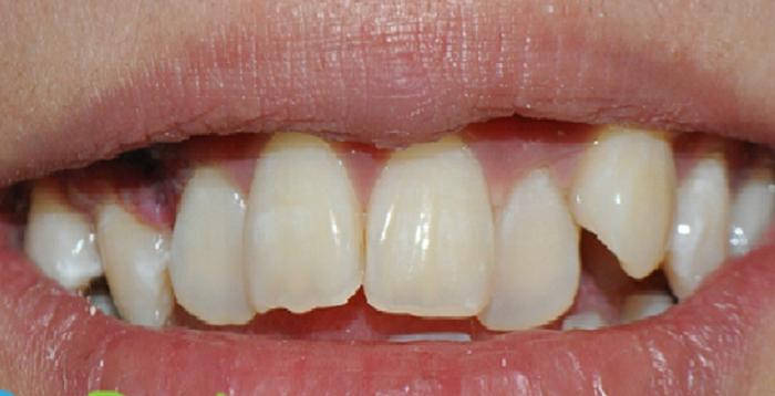 Giá dịch vụ lấy cao răng
